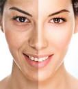 Prejavy starnutia pokožky